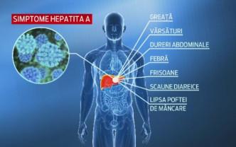 Cazurile de hepatită A în judeţul Bihor - Într-un an s-au dublat!