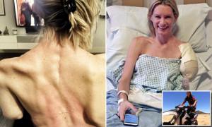 Dublura Millei Jovovich și-a pierdut o mână - Accident la filmări
